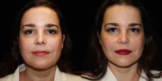 Dallas Neck Lift / Cervicoplastía - Plastic Surgery, Medspa and Laser Center   Clinique Dallas