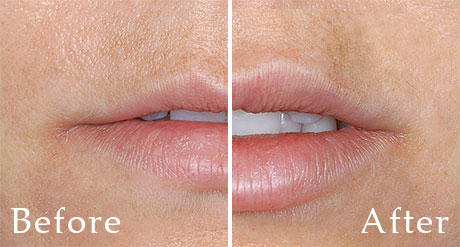 Dallas Lip Augmentation Restylane - Plastic Surgery, Medspa and Laser Center | Clinique Dallas
