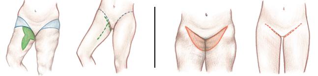 Thigh Lift Scars / cicatrices levantamiento de muslos - Plastic Surgery | Clinique Dallas