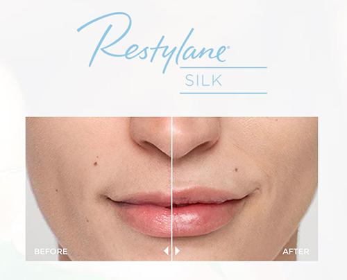 Dallas Restylane Silk | Clinique Dallas Plastic Surgery, Medspa and Laser Center