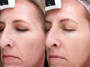 Dallas SkinPen Procedure - Clinique Dallas Medspa and Laser Center