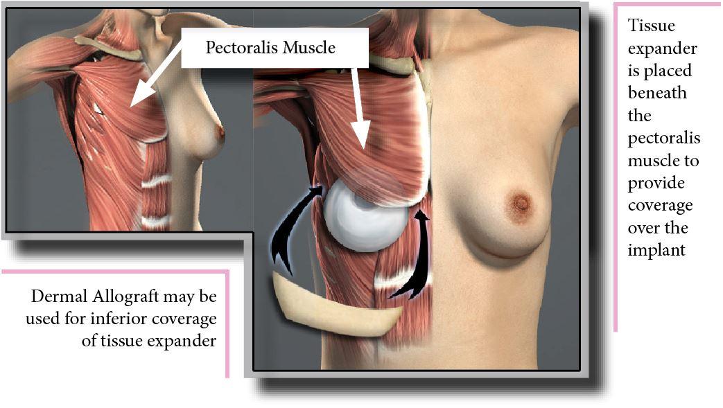 Tissue Expander - Plastic Surgery | Clinique Dallas