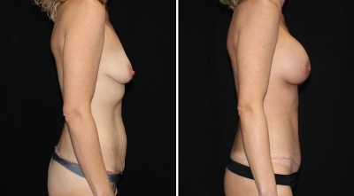 Abdominoplasty | Liposuction to Abdomen/Flanks | Breast Augmentation Mastopexy R:350cc / L:325cc
