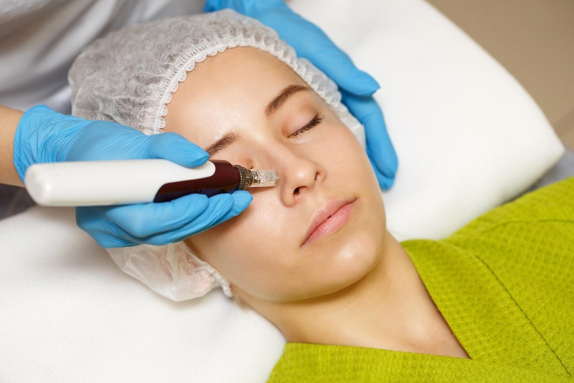 microneedling-eclipse-micropen