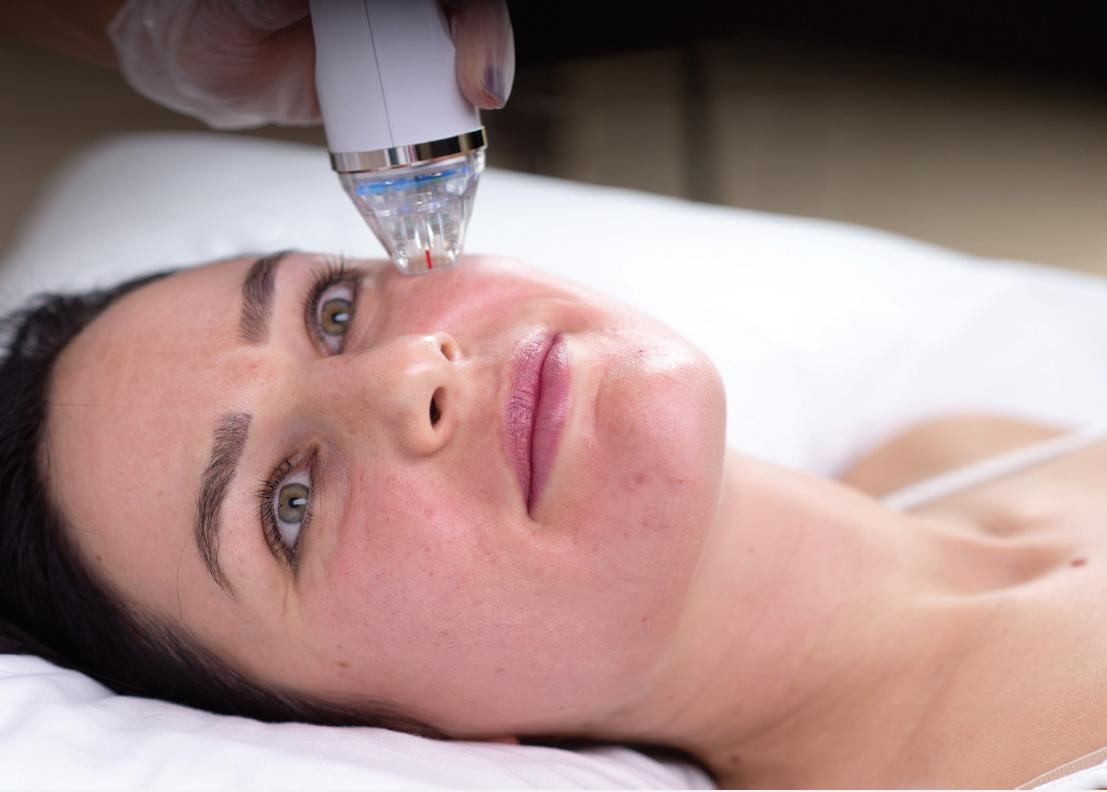 endymed-intensive-treatment