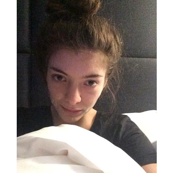 rs_600x600-140211125417-600.Lorde-Instagram-Acne-Cream.ms.021114