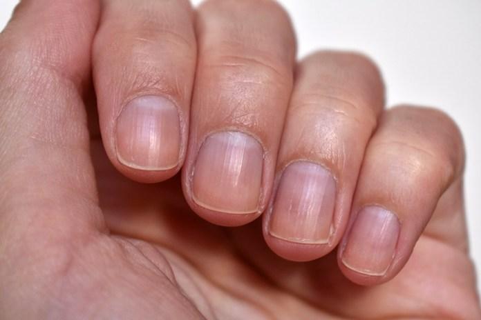 cliomakeup-rimedi-cuticole-mani-pellicine1.jpg