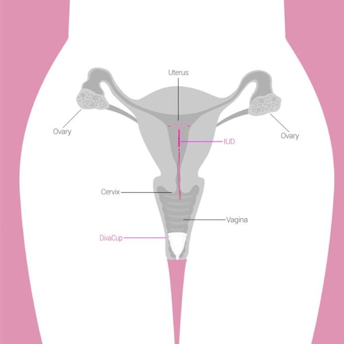 ClioMakeUp-spirale-anticoncezionale-intrauterino-5-utero-impianto-iud.jpg