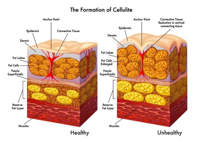cliomakeup-somatoline-anticellulite-funziona-3-cos'è-cellulite