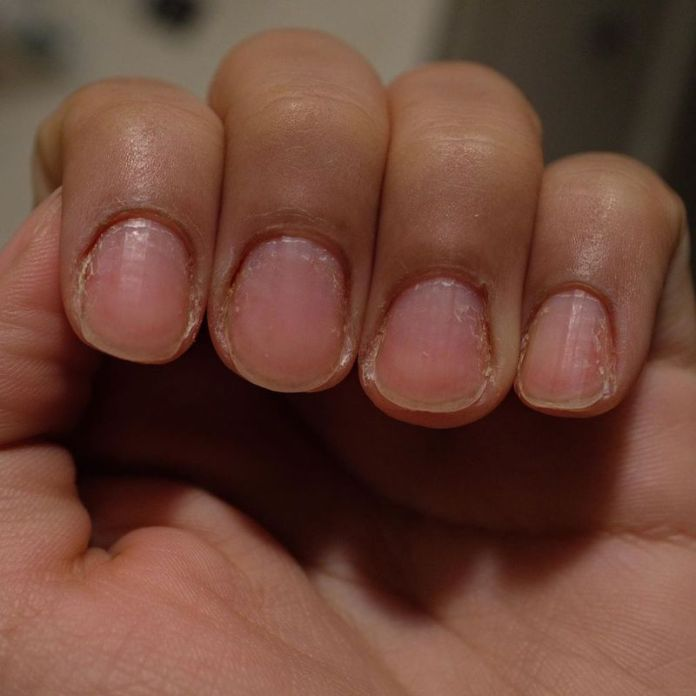 cliomakeup-trattamento-cheratina-unghie-teamclio-15
