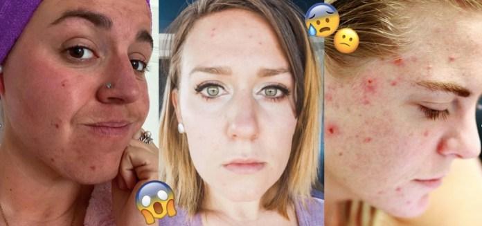 Cliomakeup-acne-da-stress-1-copertina