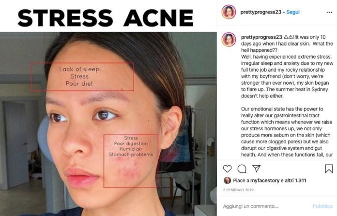 Cliomakeup-acne-da-stress-3-come-rinoscerla