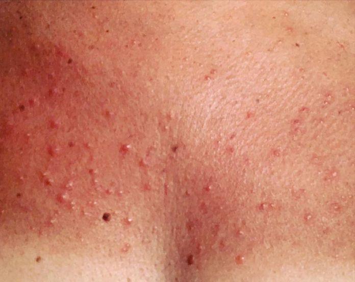 cliomakeup-dermatite-solare-teamclio-5