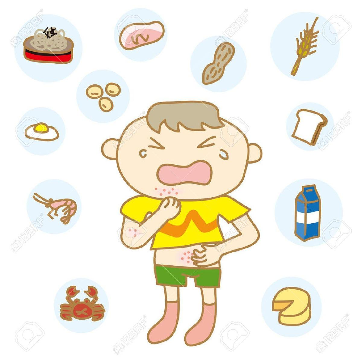 Library Of Allergy List For Children Royalty Free