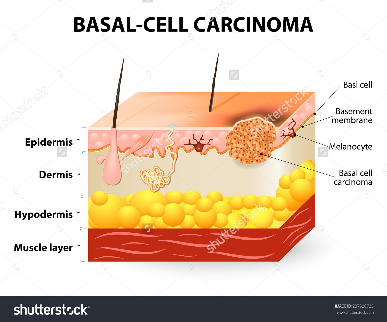 Skin Cancer Clipart