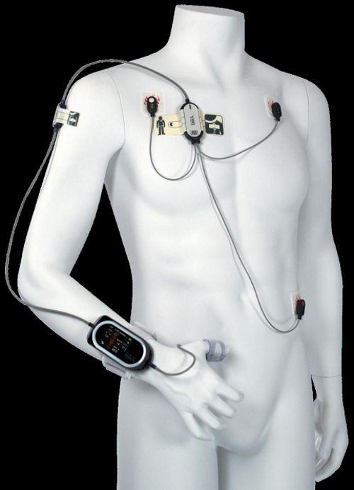 Visi Mobile en el paciente