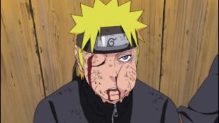 Naruto Shippuden 198 - Naruto Beat Up