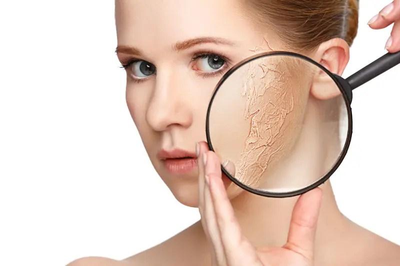 「肌の乾燥」の画像検索結果