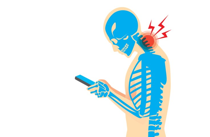 tech-neck-how-to-treat-it