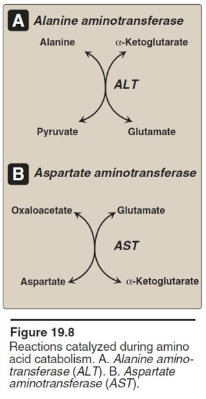 Acute liver failure due to acetaminophen overdose