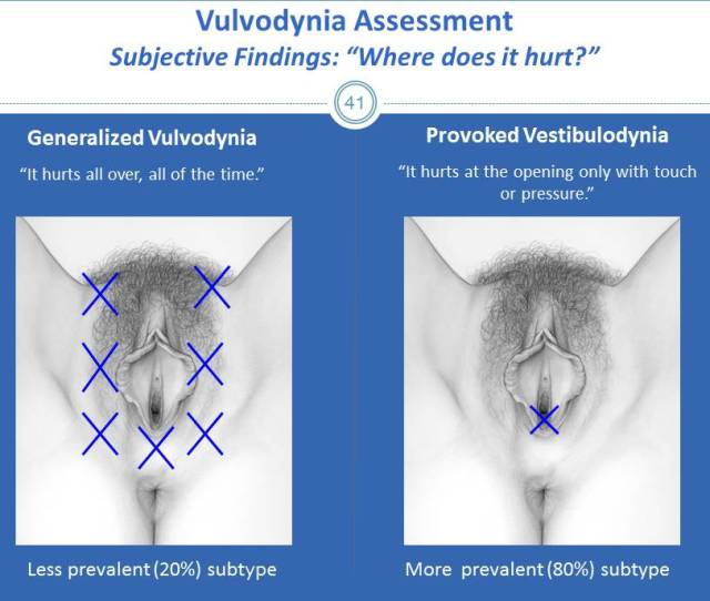 Vulvodynia A Common And Under Recognized Pain Disorder In Women And Female Adolescents Integrating Current Knowledge Into Clinical Practice