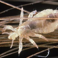 head_lice_s1_louse_on_human_hair.jpg