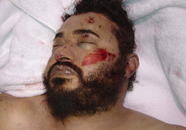 A dead Zarqawi - photo released by the DoD.