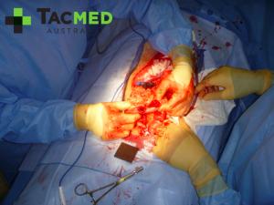 Gunshot wound laparotomy 2