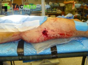 Gunshot wound leg 1