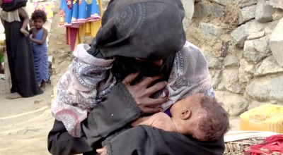 In this Aug. 25, 2018 image made from video, severely malnourished infant Zahra breastfeeds from her mother, in Aslam, Hajjah, Yemen. Yemen's civil war has wrecked the impoverished country's already fragile ability to feed its population. Around 2.9 million women and children are acutely malnourished; another 400,000 children are fighting for their lives only a step away from starvation. (AP Photo/Hammadi Issa)