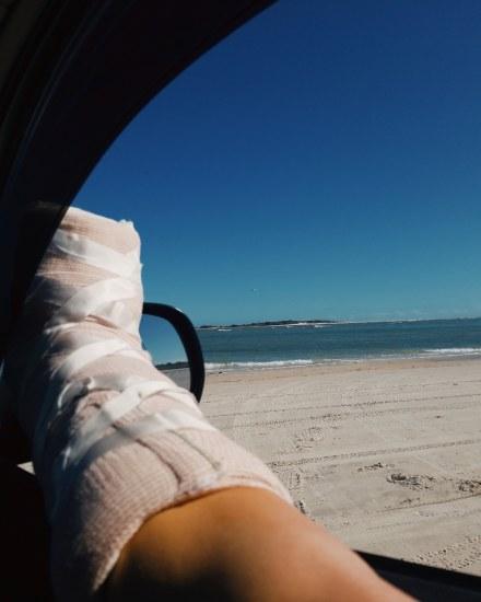 Chelsea Layton Discusses CMT Surgeries