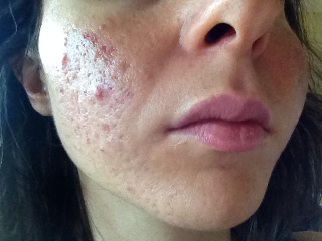 cliomakeup-acne-tardiva-3