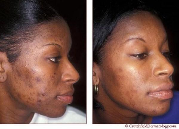 ClioMakeUp-acne-tardiva-pelle-scura-adult-acne-brufoli-cicatrici-segni-macchie