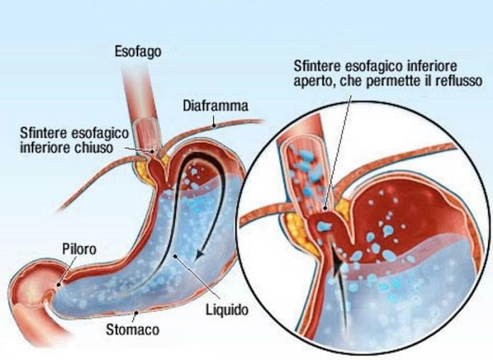 cliomakeup-bruciore-stomaco-reflusso-4
