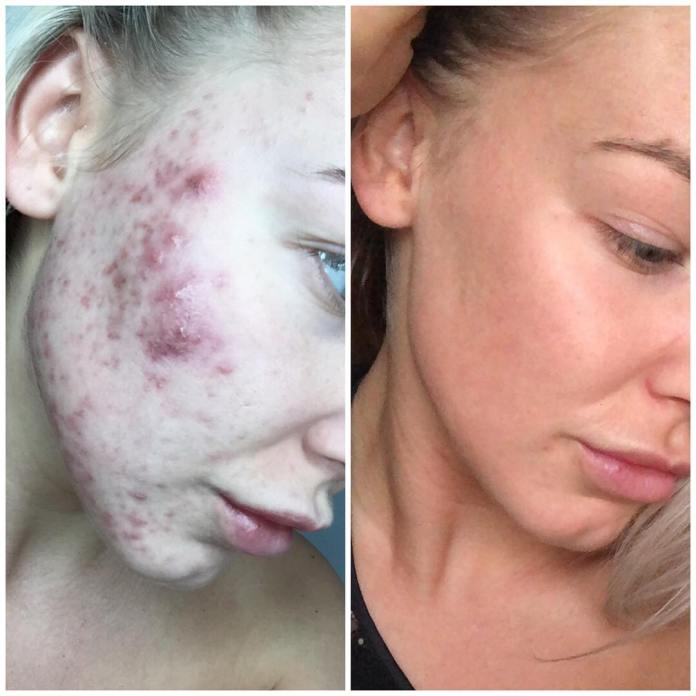 cliomakeup-skincare-pelle-acneica-10-struccante-astringente
