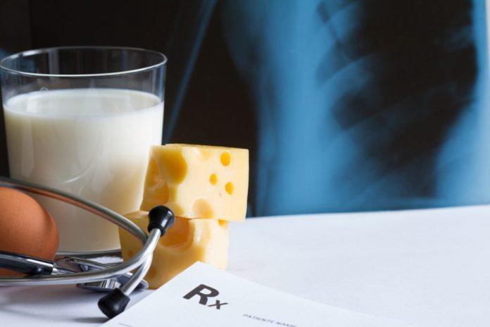 cliomakeup-prevenzione-osteoporosi-1-prevenzione