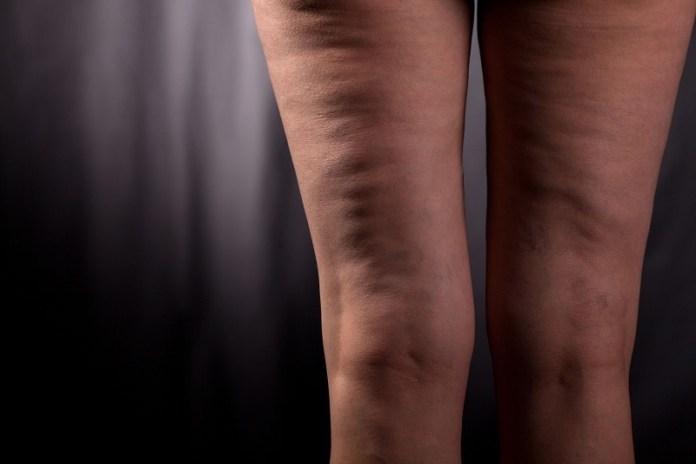 cliomakeup-nuovi-prodotti-anticellulite-5-gambe-cellulite