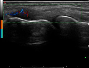 Proximal insertion of common extensor tendon: Same scan with Power-Doppler
