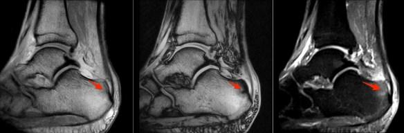 haglunds-deformity