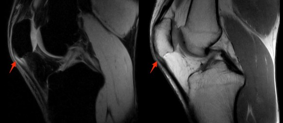 Patellar Tendon Tear