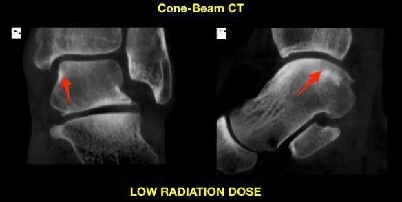 Talar Injury CT