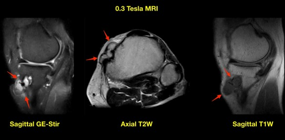 Tibial Tunnel Cyst MRI