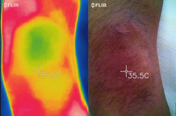 termography knee normal