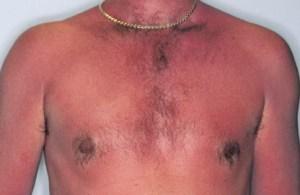 sunburn (8)