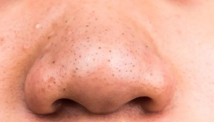 角栓(イチゴ鼻›