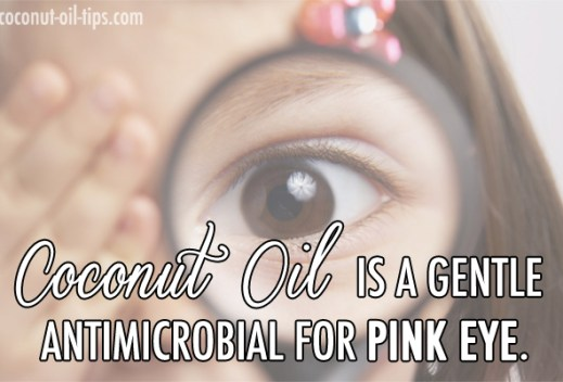 Coconut Oil Pink Eye Remedy Cure