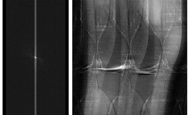 (L) Raw MRI data that has been under-sampled. The MRI scan to capture this data was conducted more quickly than one to capture full data, but the under-sampled data captured creates noise and artifacts in the resulting MRI image. (R) MRI image of the knee reconstructed from subsampled data. The fastMRI project seeks to use AI to create useful MRI images, without noise and artifacts like those shown here.