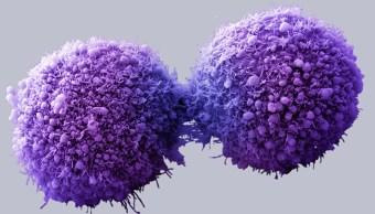 una célula humana con cáncer aumentada