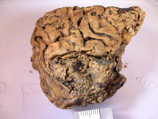 Cerebro cráneo humano conservado 2,600 años