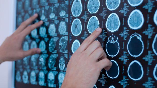Aplican método para detectar cambios cerebrales